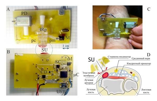 Изотонический гипертонический р